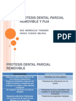 Protesis Dental Parcial Removible