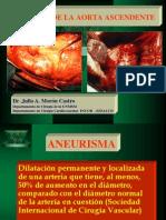 A Neurisma de Aorta