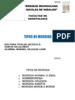 TIPOS DE MORDIDA