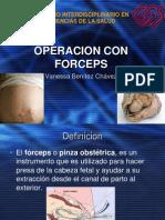 operacionconforceps-090318200749-phpapp01