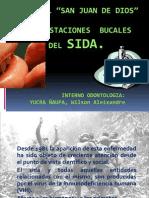 Manifestaciones Bucales Del VIH Sida.I