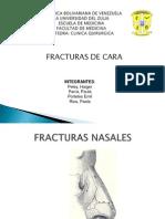 FRACTURA DE CARA