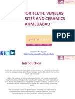 Anterior Teeth Veneers Ahmedabad
