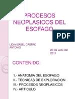 Procesos Neoplasicos Del Esofago