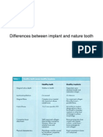 Differences Between Implant and Nature Tooth