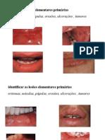 Semiologia Da Cavidade Oral2