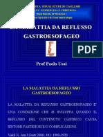 Malattia Da Reflusso Gastroesofageo