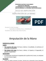 Amputación de Mano