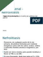 Litiasis Renal - Nefrolitiasis