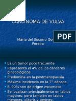 12 Carcinoma de Vulva Soco