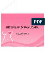 BENJOLAN DI PAYUDARA