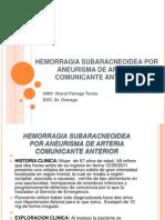 Hemorragia Subaracneoidea Por Aneurisma de Arteria Comunicante Anterior