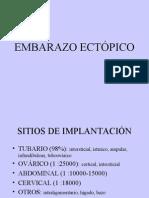 Embarazo Ect€¦Ópico
