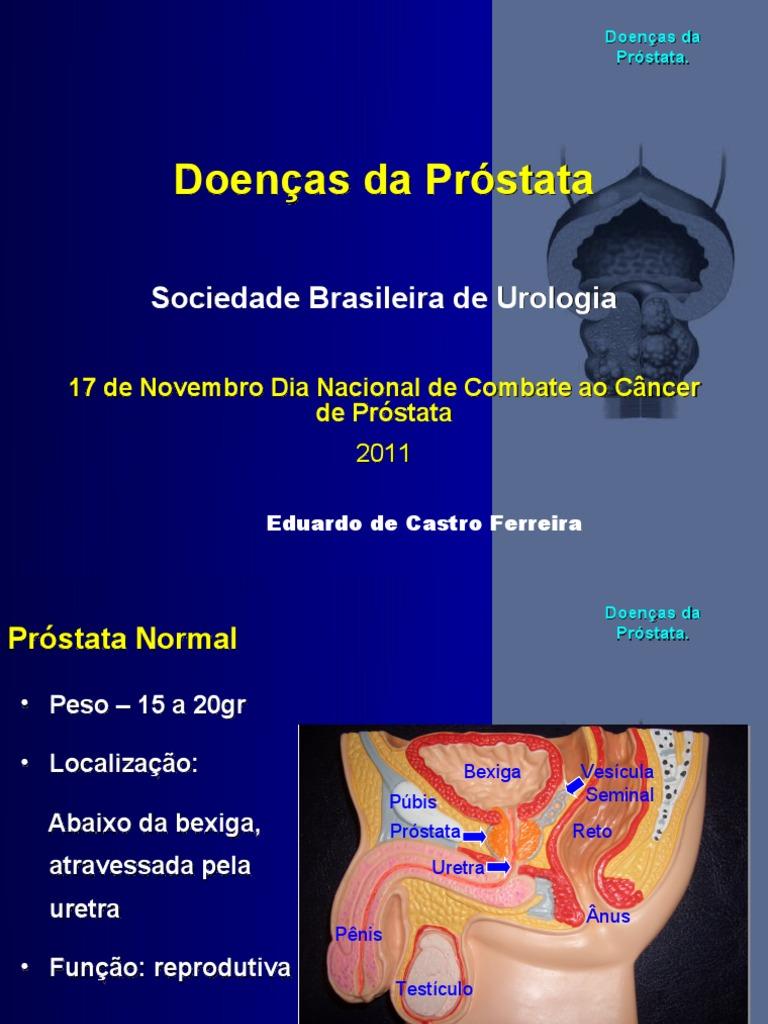 carcinoma de próstata grau 7 ano