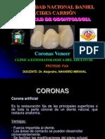 56555344 Coronas Veneer
