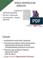 Insuficiencia Ventricular Derecha