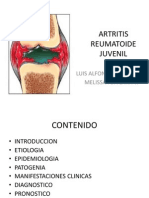 Artritis Reumatoide Juvenil Final