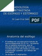 RadiologÍa Contrast Ada
