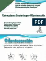 cirugia odontosección