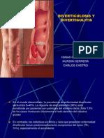 Diverticulosis y Diverticulitis