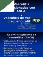 Vasculitis Con ANCA