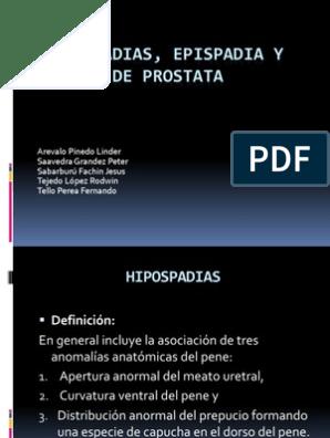 costo de la próstata uro