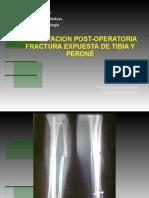 FX Exp. Tibia y Perone