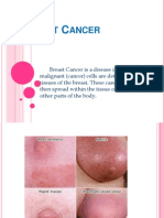 Breast Cancer Report