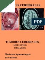 Clase 3 Tumores Cerebra Les