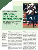 Fraturas Metacárpicos LSB