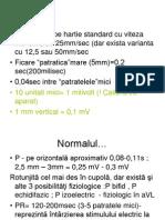 Ekg Normal Partea 3