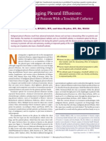 Managing Pleural Effusions Nursing Care of Patients With a Tenckhoff Catheter