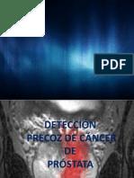cancer mm