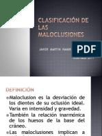 15.-Clasificacion de Las Maloclusiones1