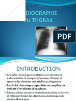 TD Radio thorax Normale