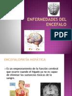 Enfermedades Del Encefalo