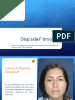 Displasia Fibrosea
