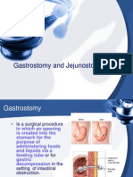Gastrostomy and Jejunostomy