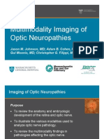 Multimodality Imaging Review of Optic Neuropathies