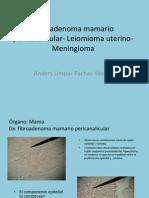 fibroma  Mamario -Leiomioma Uterino- Meningioma