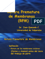 17 Rotura Prematura de Membranas