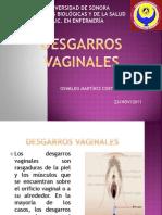 Desgarros vaginales
