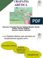 neuropatía diabetica