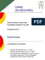 Fracturas Dentoalveolares Final
