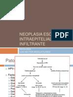 Neoplasia Escamosa Intraepitelial e Infiltrante