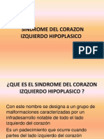 Sindrome Del Lado Izquierdo Del Corazon