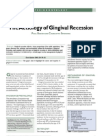 The Aetiology of Gingival Recession