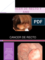 6 Cancer de Recto y Ano- Melba Carrera