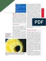 The Pa Tho Physiology of Acute Coronary Syndromes