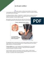 Causas y síntomas de paro cardíaco